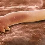 ΠΡΟΣΟΧΗ! Βακτήρια και επικίνδυνοι οργανισμοί… μια ανάσα από το πρόσωπό σας!