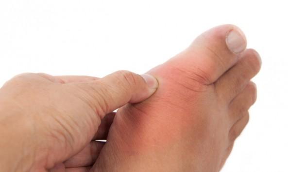 ouriki arthritida