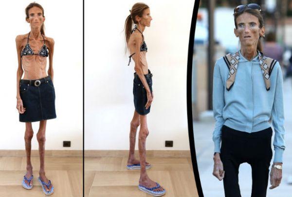 valeria-levitin-neuriki-anorexia