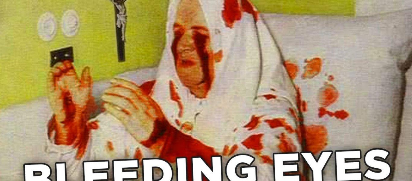 bleeding-eyes
