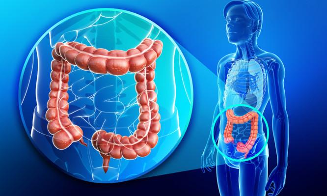 colon-colorectal-cancer-666x399