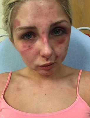 A DOMESTIC abuse victim has revealed sickening pictures of the horrific injuries she suffered at the hands of her former partner. Brave Kelsie Skillen was beaten to a pulp by her vicious boyfriend James McCourt, 19, at the home they shared together. The graphic pictures show her injuries after being subjected to a beating lasting four hours in June this year. Kelsie, 19, a make up artist from Bishopbriggs, near Glasgow, was rushed to hospital following the attack which left her with cuts to her face and covered in bruises. McCourt has been remanded in custody to await sentencing after he admitted the brutal assault during an appearance at Glasgow Sheriff Court. Kelsie said she wanted to warn other people about McCourt so that they don't suffer the same fate as her.