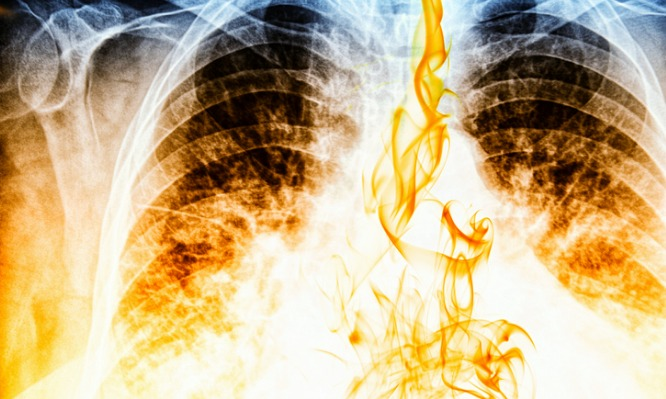 fire-visible-on-chest-xray-image-picture-id184919296