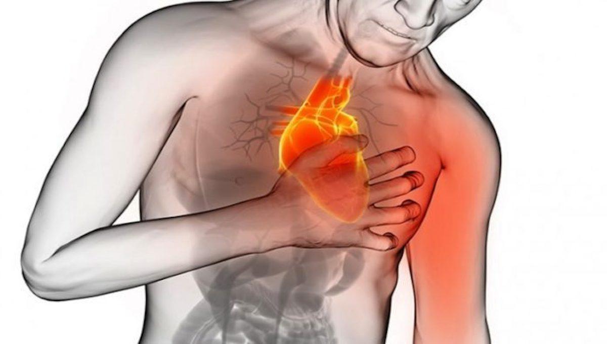 symptoms-Heart-Attack-