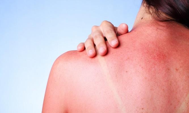 A female touching her sunburned shoulder