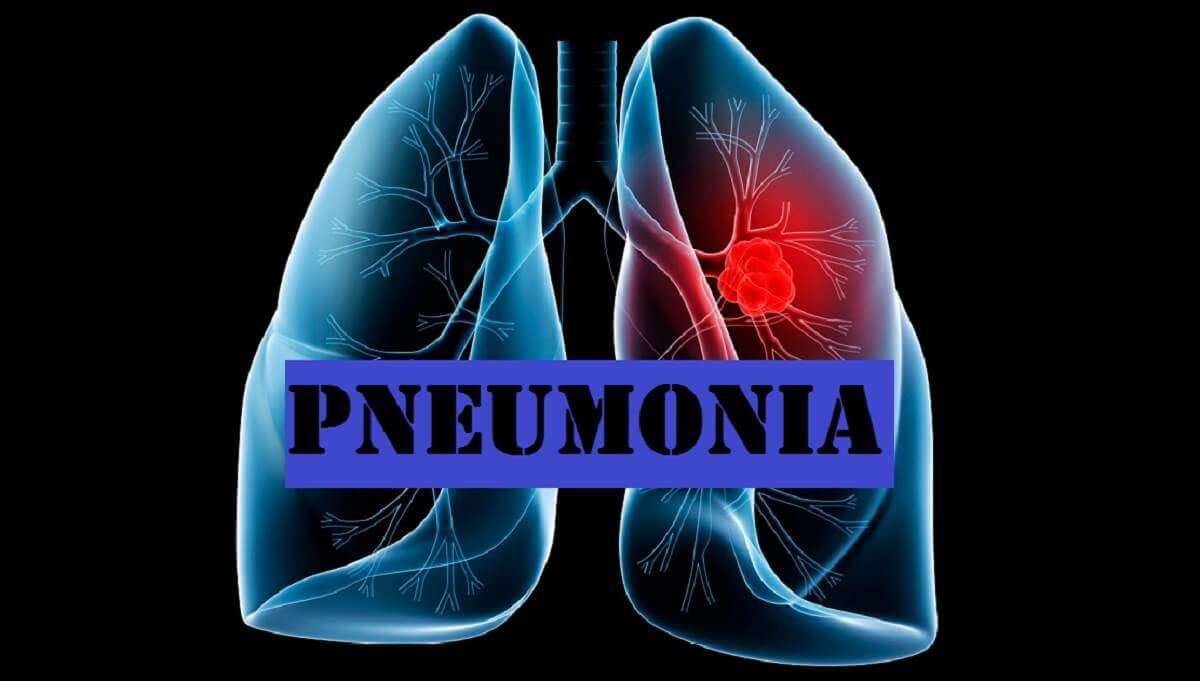 pneumonia-causes-types-diagnosis-treatment